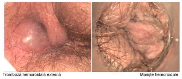 Swollen anal tissue