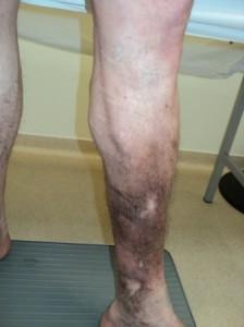dermatita ocra Web