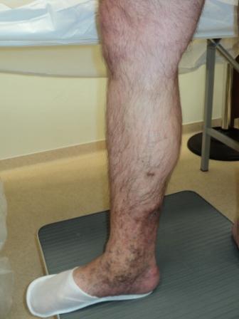 picioare mâncărime și coapse interioare tipuri de ulcere la nivelul membrelor inferioare