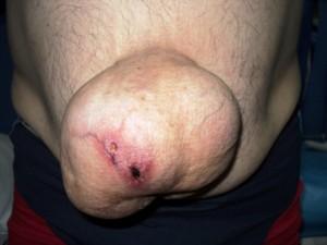 Hernie ombilicala voluminoasa cu leziuni tegumentare asociate