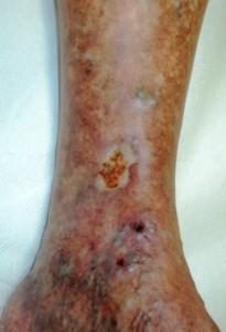 Ulcer varicos gamba